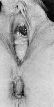 Black vagina exam think, that