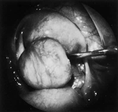 Leiomyomas of the Uterus   GLOWM