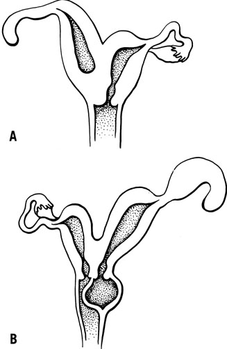 Surgical Correction Of Uterovaginal Anomalies