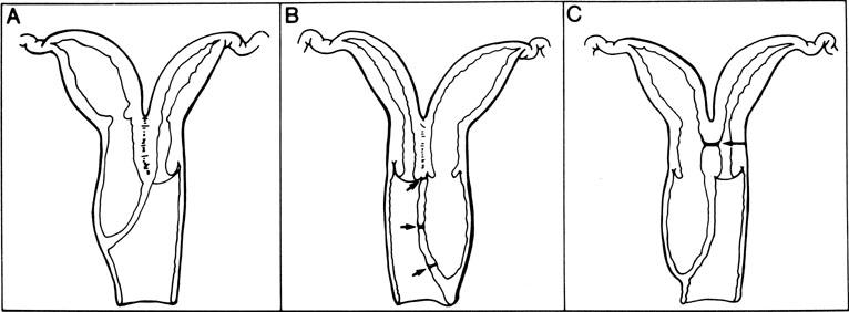 A  Complete vaginal  Vaginal Agenesis