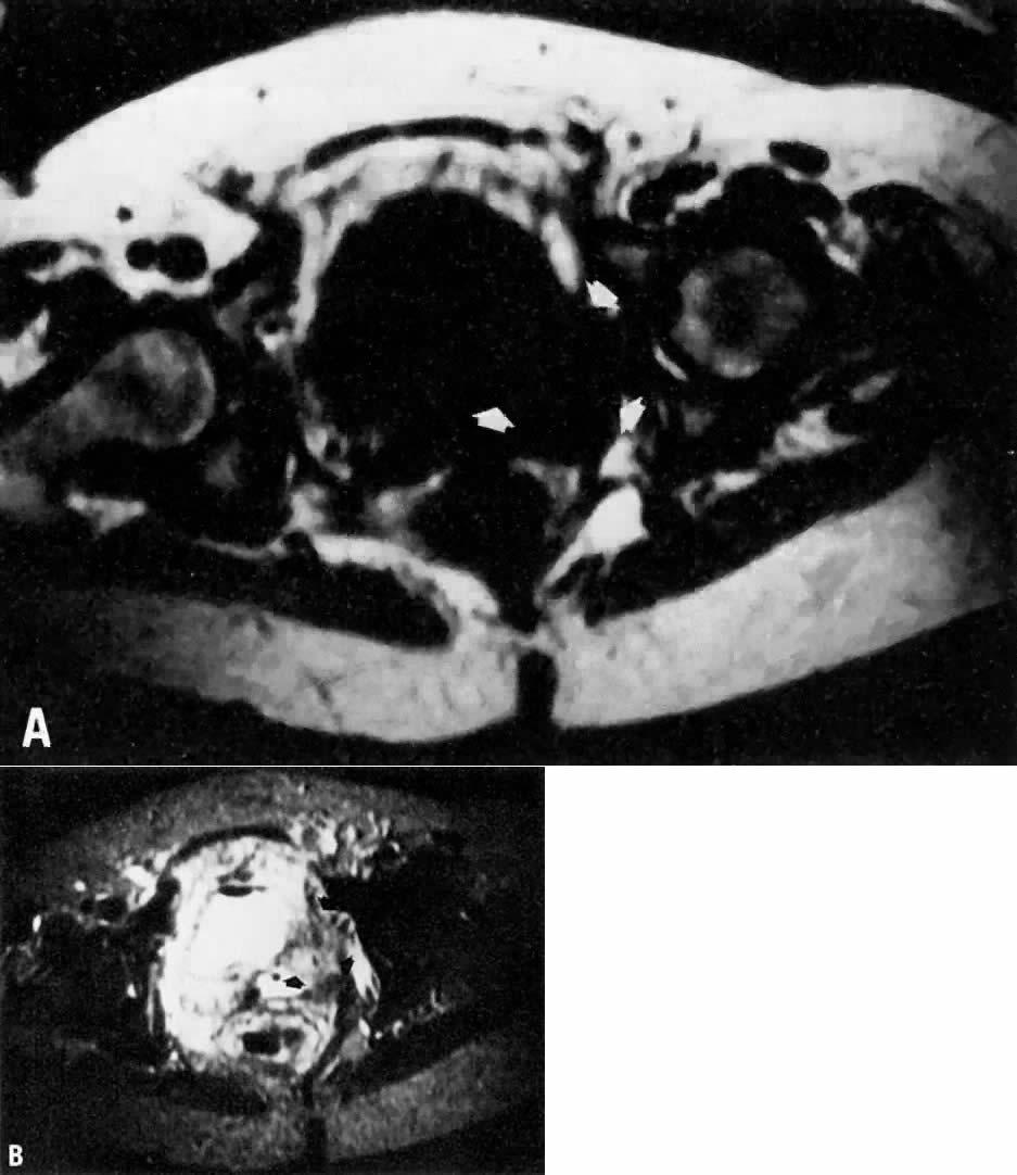 Magnetic Resonance Imaging in Gynecology   GLOWM