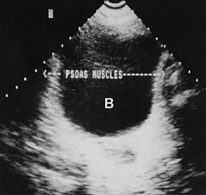 Diagnostic Ultrasonography in Gynecology | GLOWM