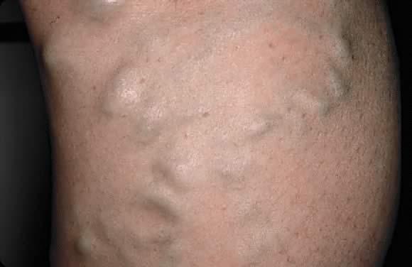 Dermatologic Diseases In Pregnancy Glowm