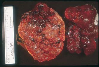 Placental Abruption   GLOWM