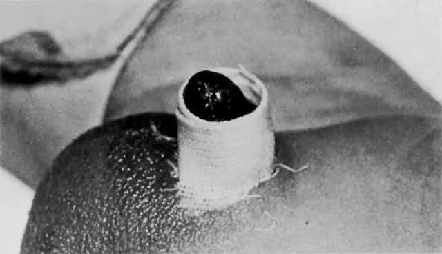 Circumcision: Ritual and Surgery | GLOWM