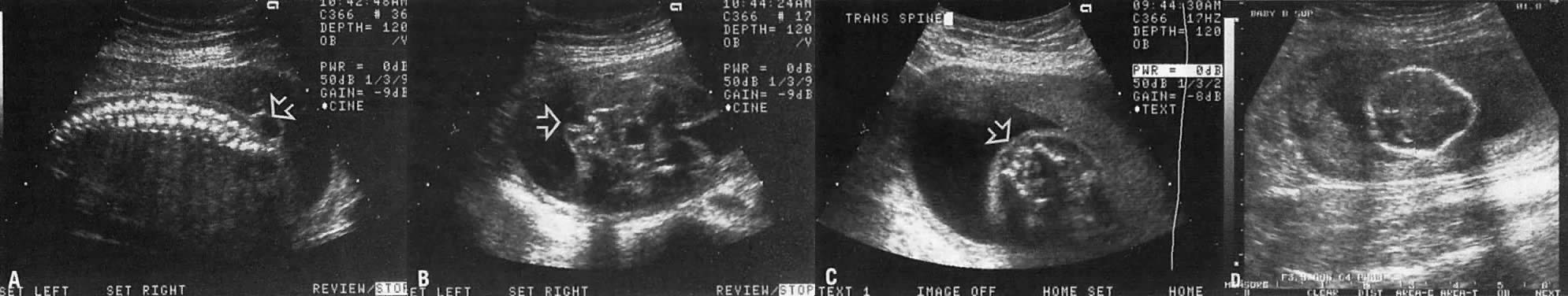 Ultrasound Diagnosis of Fetal Anomalies | GLOWM