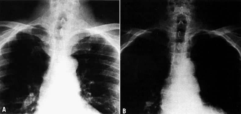 Disorders Of The Thyroid Gland Glowm