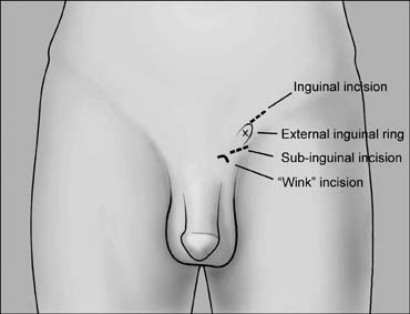 Microsurgical Testicular Sperm Extraction