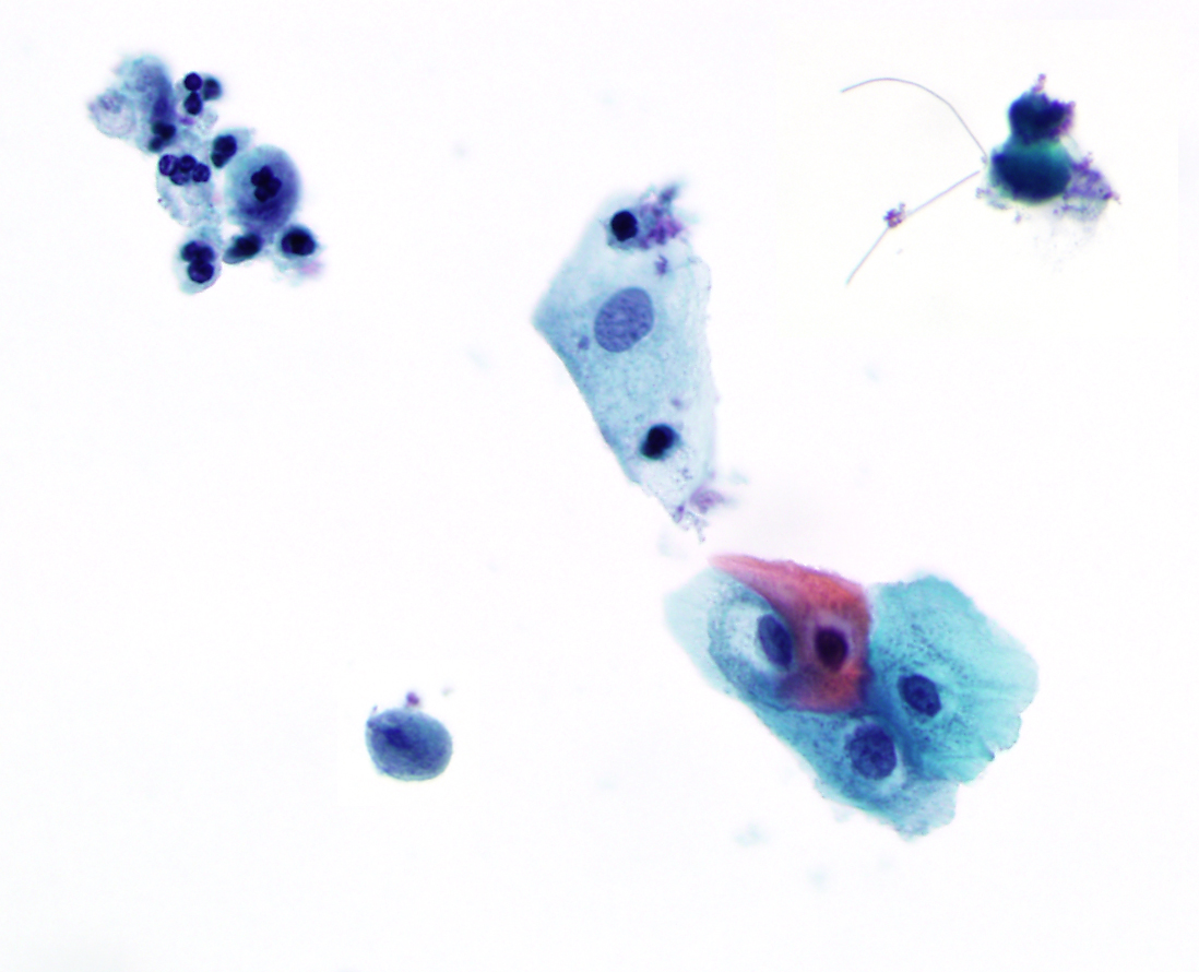 Pdf bibbo cytopathology