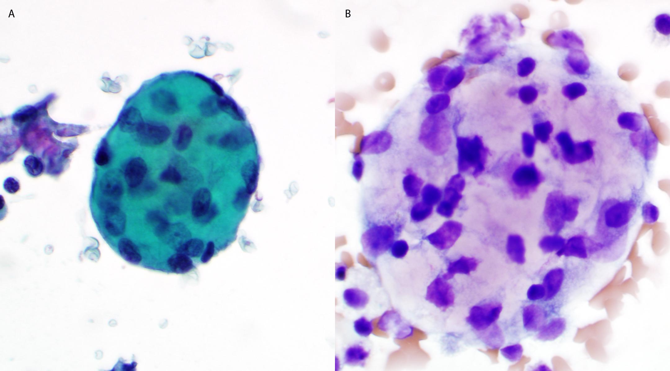 Mesothelial Cells in Body Fluids