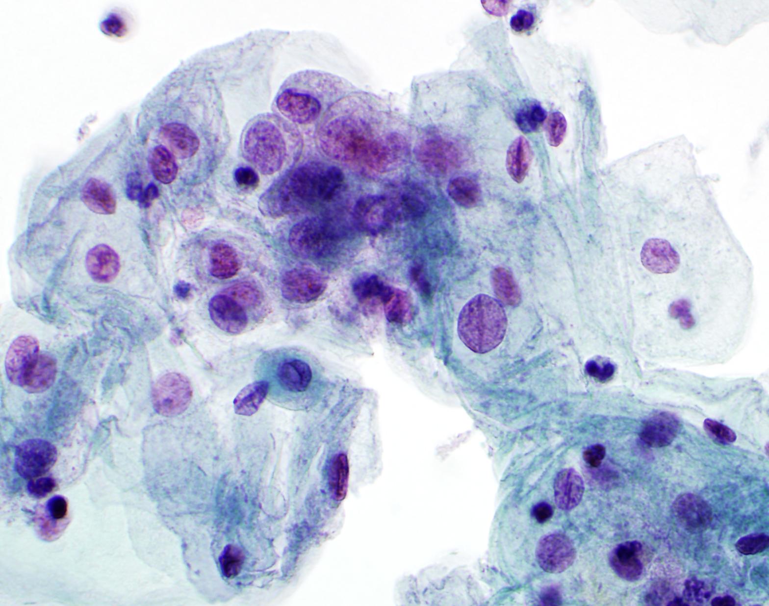 Not favorite abnormal glandular pap smear in vagina