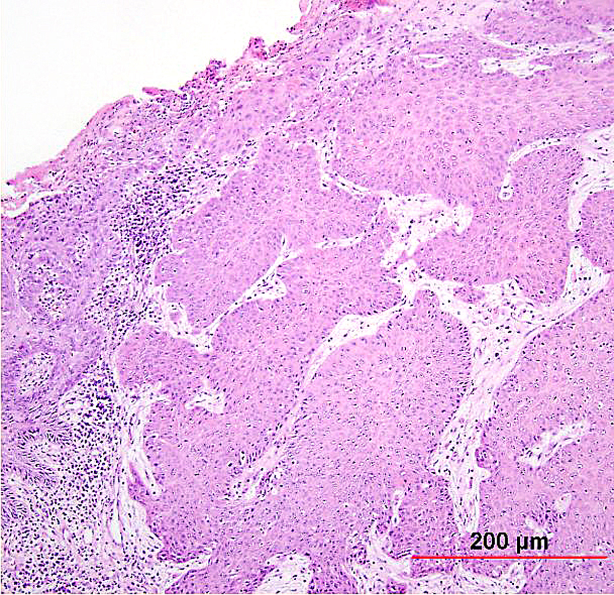 Pathology of Cervical Carcinoma | GLOWM