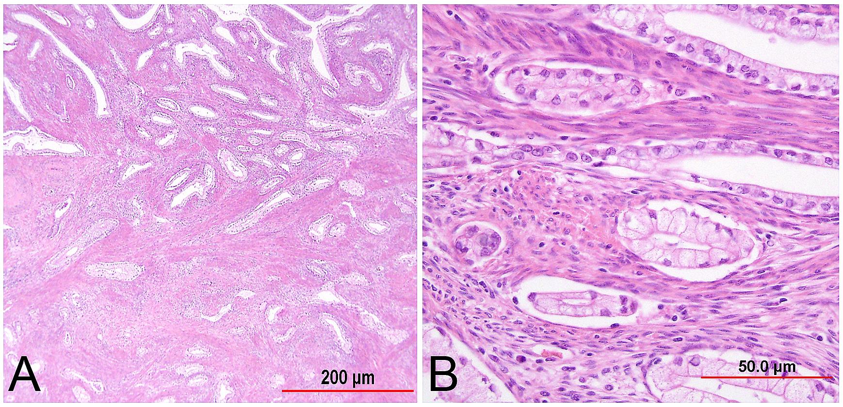Pathology of Cervical Carcinoma | GLOWM
