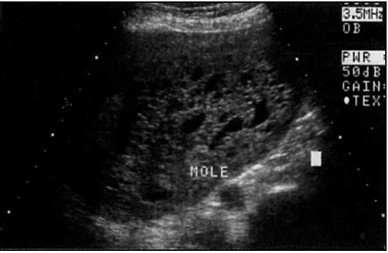 How accurate is ultrasound for dating pregnancy, aroused female hot