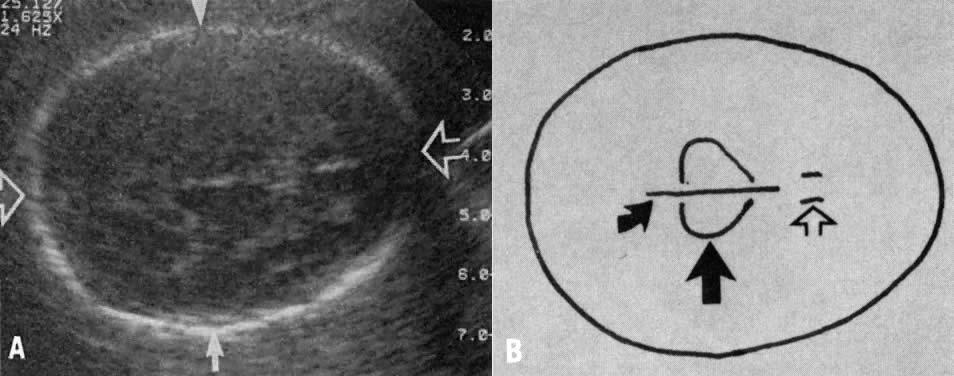 Criteria ultrasound dating First trimester