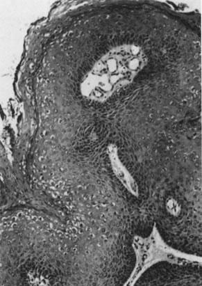 condilom mangan il papilloma virus fa dimagrire