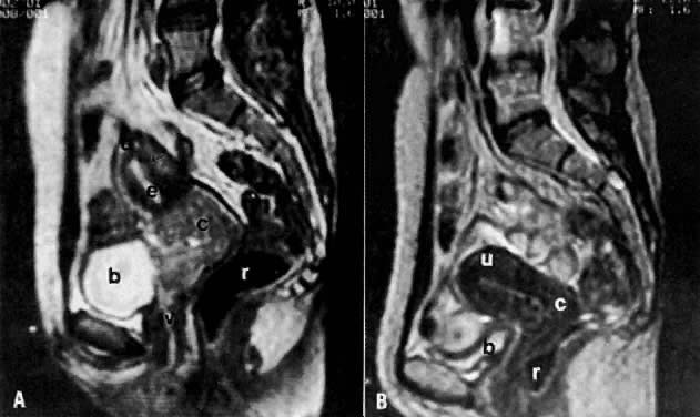 Radiology In The Diagnosis Staging And Management Of Gynecologic Malignancies Glowm