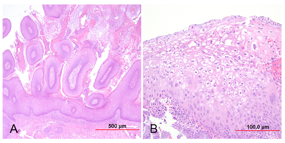 condyloma acuminata histopathology description paraziti jos cenzura