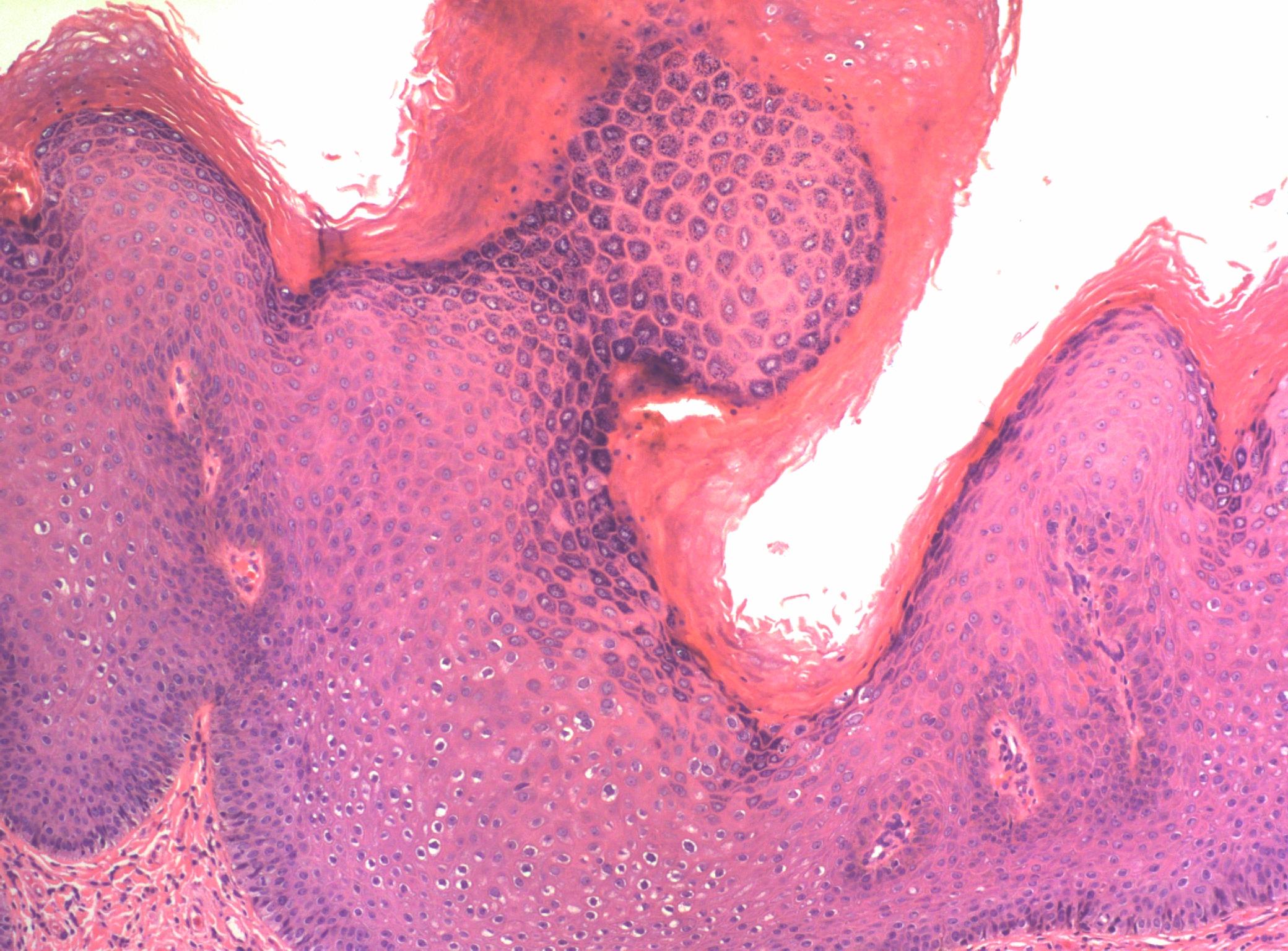 condyloma hyperkeratosis